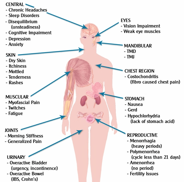 fibromyalgia-effects